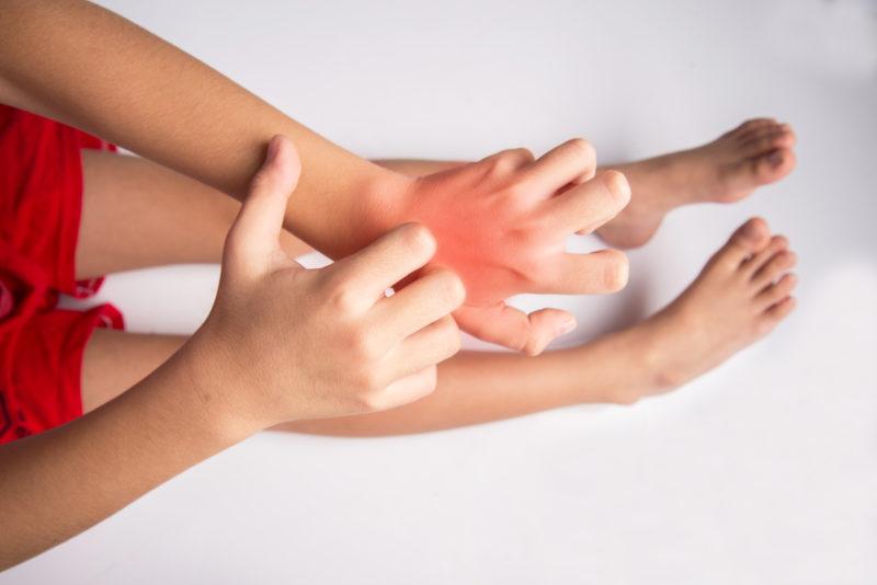 Child Hand Pain